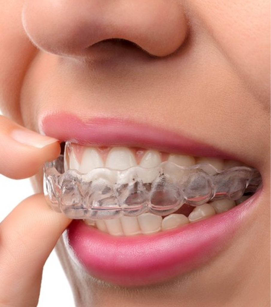 Portland Invisalign dentist