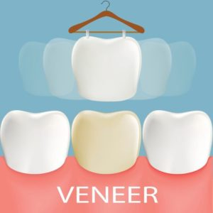 Dental veneers. Tooth anatomy.